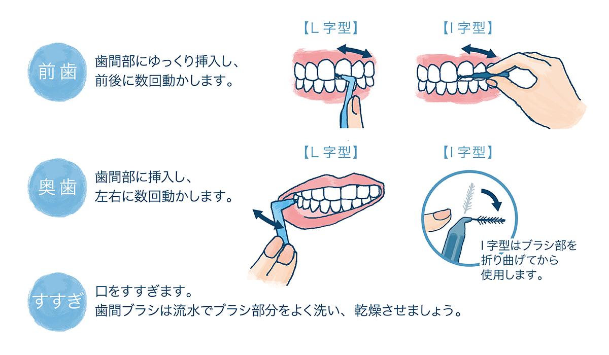 フロス 順番 歯磨き